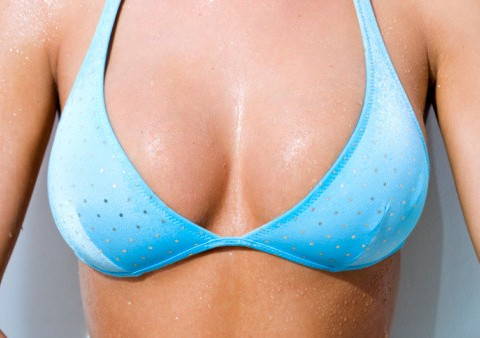 breast-implants-bikini-albany-506x338