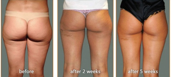 03c-cellulite-treatment-before-after-02-m7s3nyb5bzlrdofsw945v1s8z1da9drlan36wbqdkc