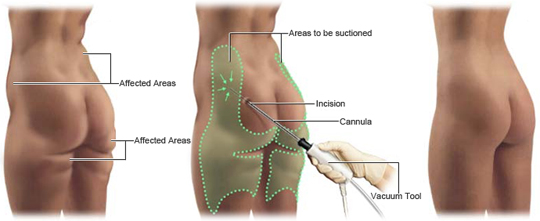 Best_Liposuction_clinics_and_surgeons_in_morris_county_nj