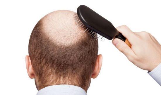 Hair-Lohhhss