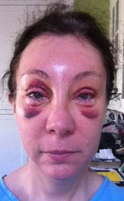 Blepharoplasty Video Diary - Day 5 After Surgery (4 of 15 ... |Lower Blepharoplasty Recovery Photos