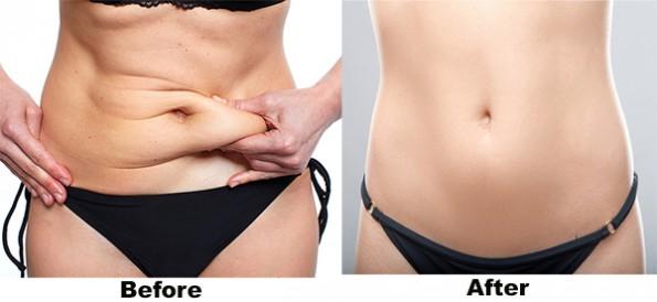 LiposuctionAbs