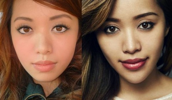 Michelle-Phan-Plastic-Surgery-Chin-Implants