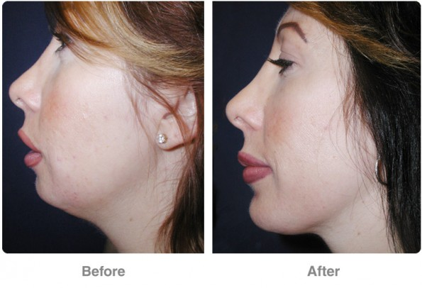 before-after-chin-2
