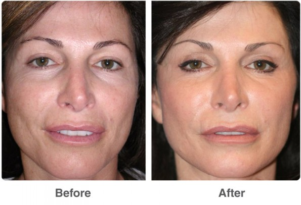 before-after-dot-face-4