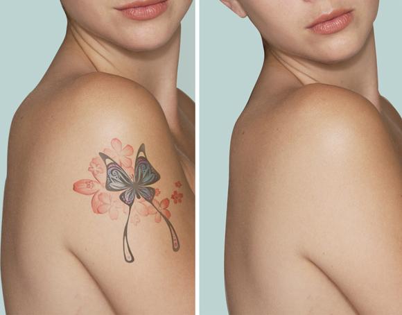 beforeafter_laser-tatoo