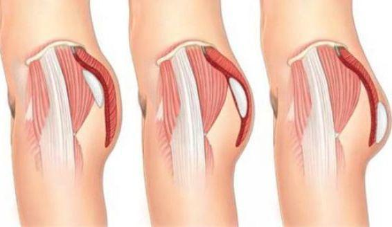 buttock-augmentation