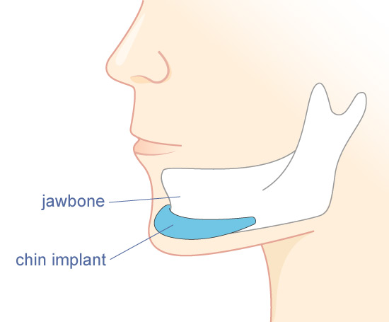 chin-implant-illust1