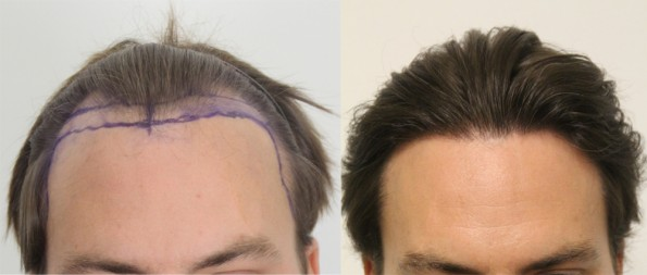 dave-from-new-york-hair-transplant-before-after