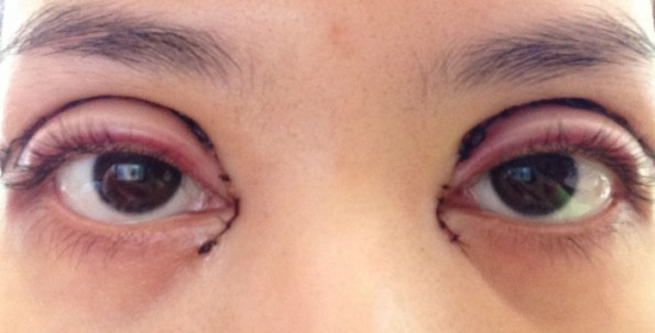 double-eyelid-surgery-gone-bad