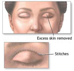 eyelid-surgery-in-Santa-Ana