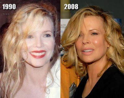 kim-basinger-before-after-plastic-surgery
